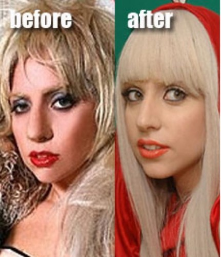 Lady Gaga -- nose before after