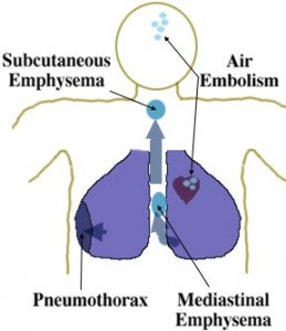 subcutaneous emphysema