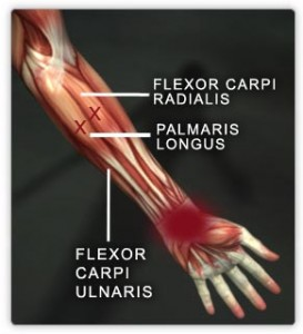 List of Useless Body Parts: palmaris longus
