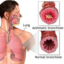 asthma lung - no known cure for asthma