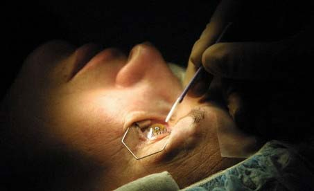 top ten list-top ten medical mistakes-wrong eye surgery
